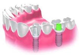 MI Dental Practice - Treatments