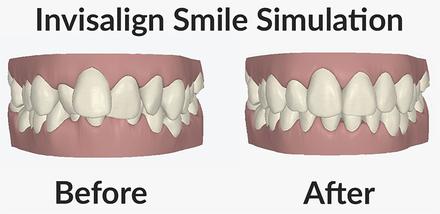 MI Dental Practice - Invisalign