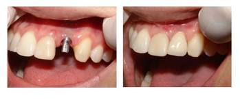 MI Dental Practice - Dental Implants